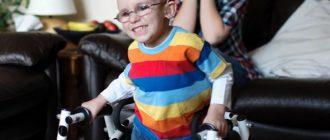 Какие пособия полагаются родителям детей-инвалидов